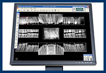 Digital Dental X-rays East Windsor NJ